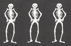 dem bones skeleton dance